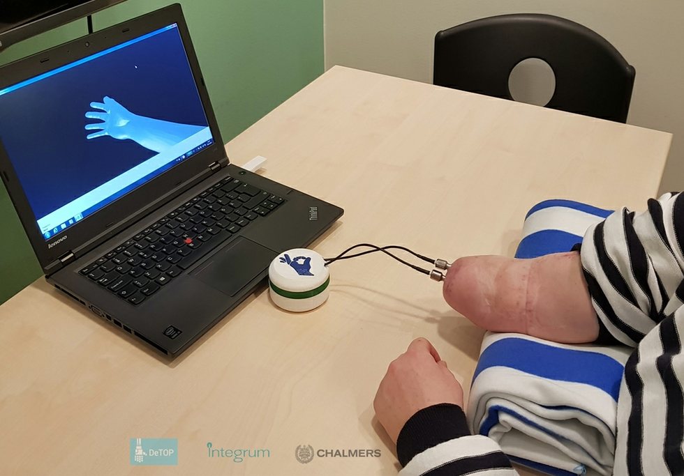 New osseo-neuromuscular implant